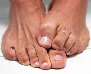 Ciuperca piciorului putereaplantelor