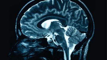 Stiati ca atunci cand jucati jocuri, aproape intregul creier este angajat in lupta pentru a castiga?