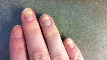Culoarea, textura si forma unghiilor iti ofera indicii importante despre sanatate