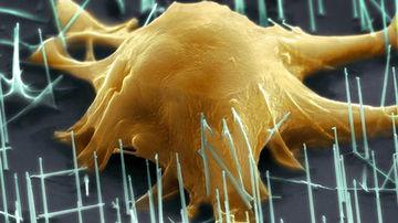 Tratamentul cu celule stem: mituri si realitati