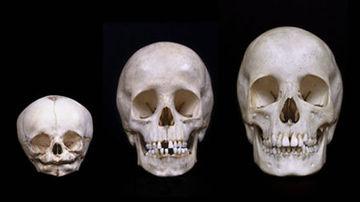 ...craniul oamenilor este in continua crestere?