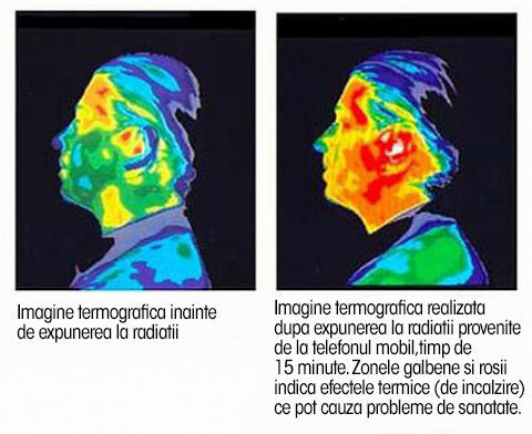 telefoanele-mobile si creierul beneficii nefolosire