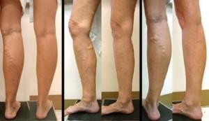 semne de apariție a picioarelor varicoase