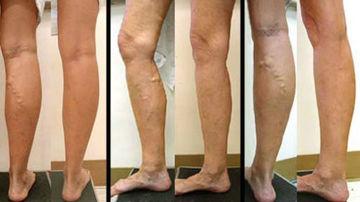 umfunde piciorul de la varicoză ce să facă)