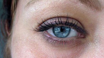 Remedii naturale pentru cearcane si pungile de sub ochi