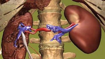 Vindecarea bolilor de rinichi cere magneziu