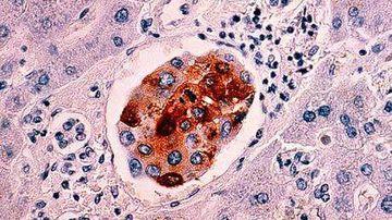 Incidenta cancerului in crestere cu peste 70% in urmatorii ani
