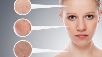 Ce trebuie sa stii despre dermatite