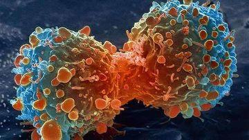 "Un ""val gigantic"" de cancer la orizont, avertizeaza OMS"