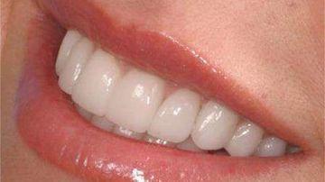 Remedii naturale pentru problemele gingiilor