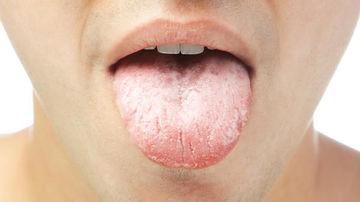 Ce iti poate spune limba despre tiroida