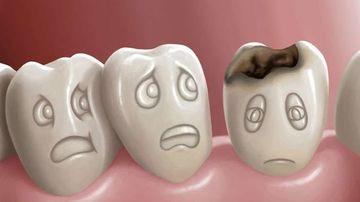 4 motive pentru care problemele dentare provoaca boli corpului tau