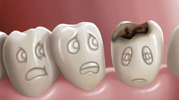 Afectiuni posibile cauzate de problemele dentare netratate