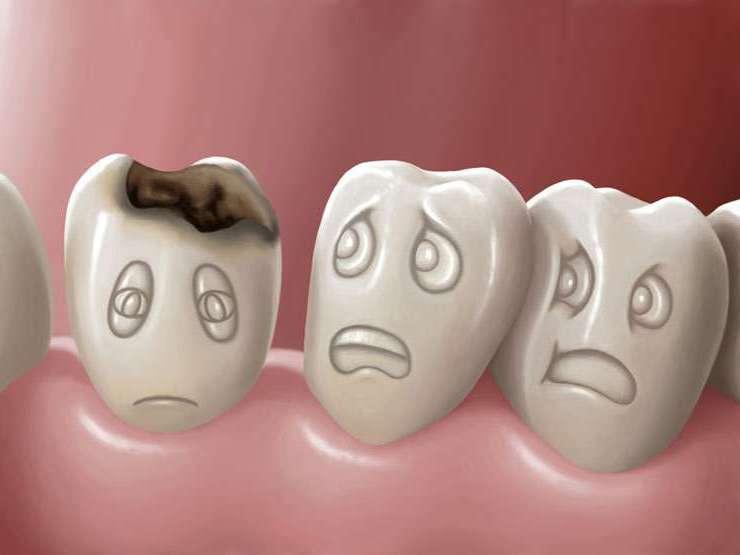 preoblema dentara