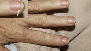 Unghiile: 5 semne care indica spre probleme de sanatate mai mari