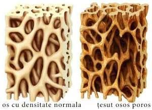 osteoporoza - deficienta de vitamina C