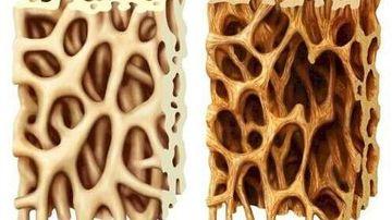 Osteoporoza reprezinta scorbutul oaselor, nu deficienta de calciu