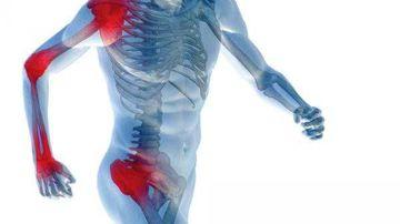 10 lucruri de stiut pentru oricine lupta cu inflamatiile