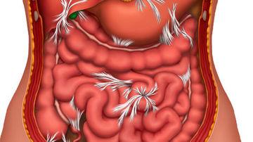 10 semne ale unor intestine nesanatoase si cum se vindeca acestea