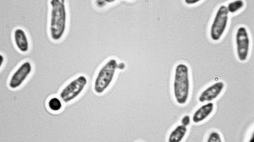 Legatura surprinzatoare dintre Candida si inflamatie