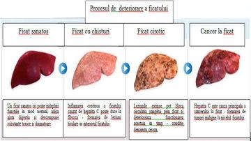 Borsul de sfecla ajuta la mentinerea sanatatii ficatului si a vezicii biliare