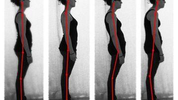 Postura capului inainte, o conditie moderna ce poate deteriora sanatatea intregului corp
