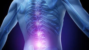 Aparitia durerilor lombare si relatia neasteptata dintre sciatica si colesterol pe care prea putini o banuiesc