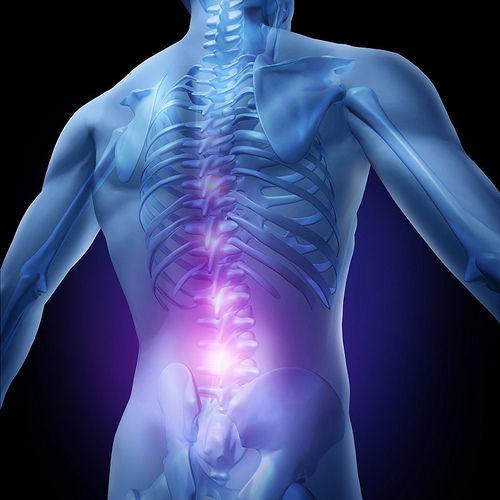 durere de spate cronica sciatica colesterol