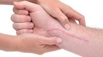 8 secrete pentru a scapa de cicatrici
