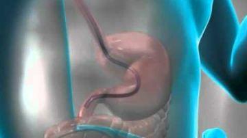 Trateaza refluxul gastric inainte sa evolueze inspre cancer