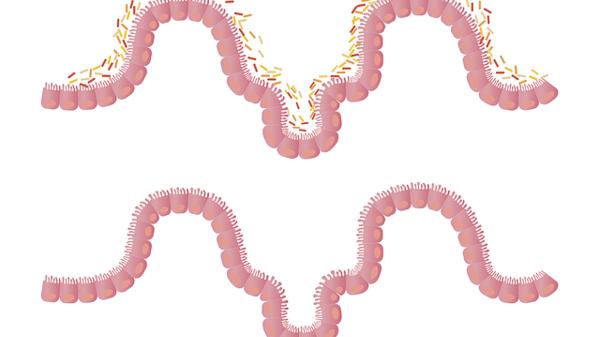 ulcerele peptice pot provoca pierderea în greutate