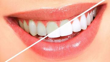 Cele mai bune 9 remedii pentru dintii ingalbeniti, care nu distrug smaltul