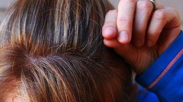 Parul carunt poate aparea si din alte motive ce nu tin de vârsta. Care sunt acestea si ce tratamente exista?