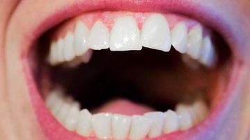 Ce trebuie sa stiidespre bolile periodontale sigingivale si cum le poti trata in mod natural