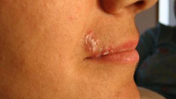 Cum ameliorezi simptomele  herpesului tinand cont de cateva sfaturi simple