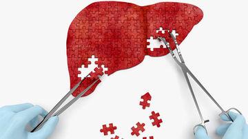 Metode naturale de tratare a bolilor de ficat