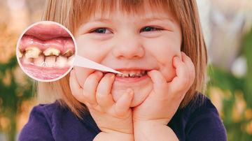 Demineralizarea dinților la copii - cauze, simptome, tratament