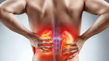 De ce apare durerea de rinichi? Afecțiunile renale și remedii naturale benefice